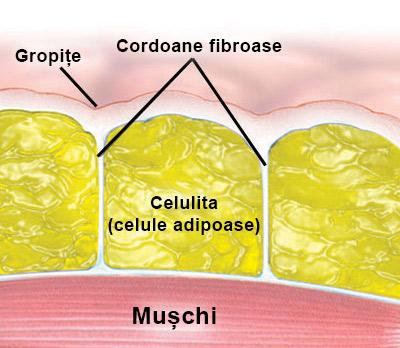 anatomia celulitei
